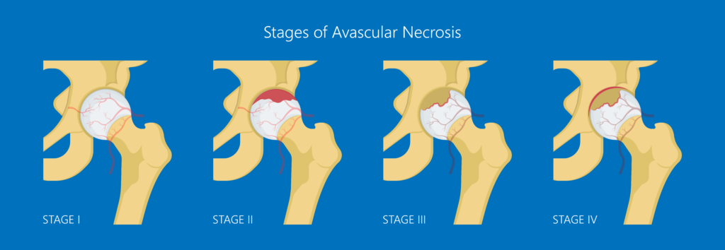 Stages of Avascular Necrosis