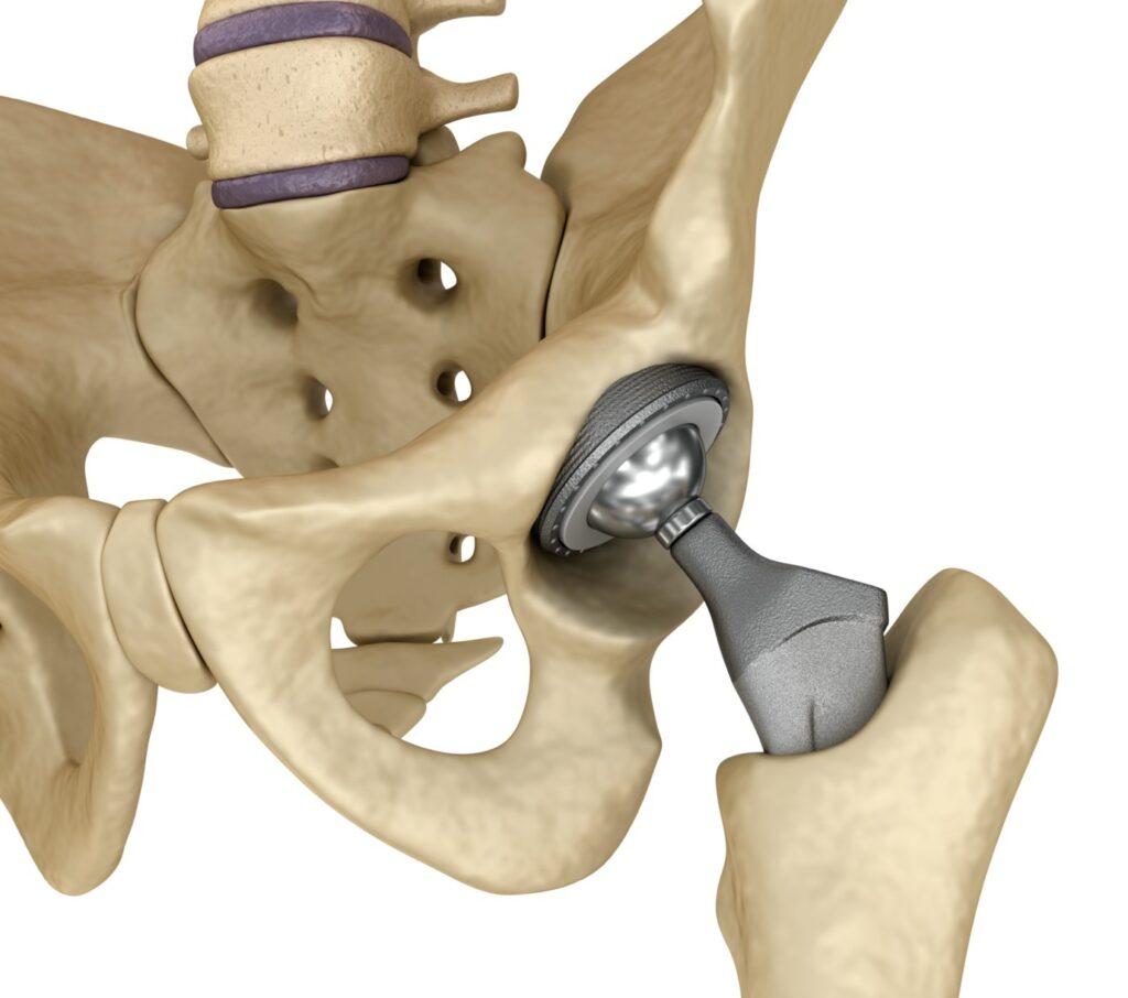 Hip replacement surgery in mumbai
