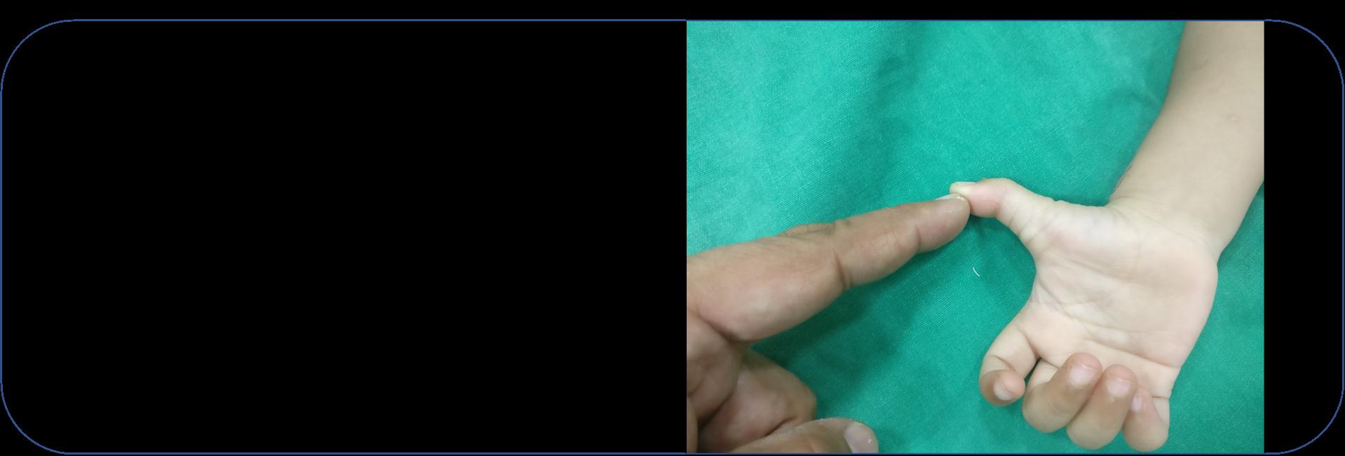 Congenital Trigger Thumb
